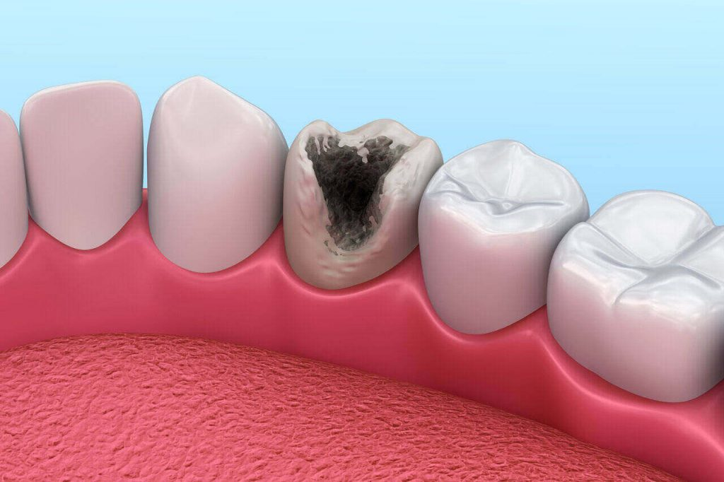 Tooth Enamel: Decay And Cavity At High Risk With Erosion