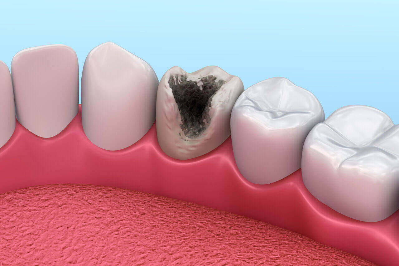 tooth decay after enamel erosion